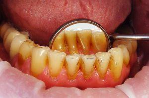 Причины появления, вред и меры профилактики зубного камня