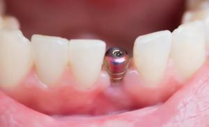 Имплантация зубов: распространенные вопросы пациентов